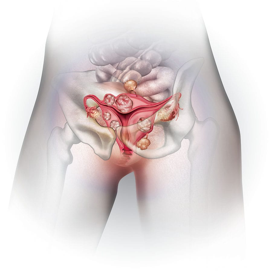 cyst or fibroid
